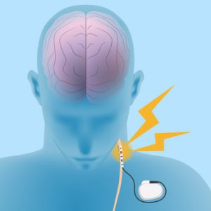 human brain and vagus nerve stimulation:VNS, image illustration